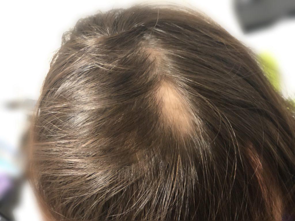 ステロイドパルス療法で治療をうける前日