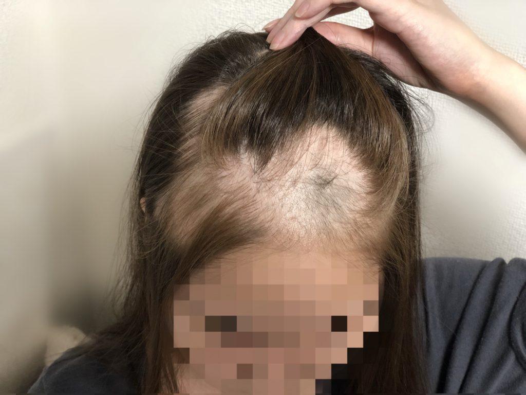 多発性円形脱毛症が広がる