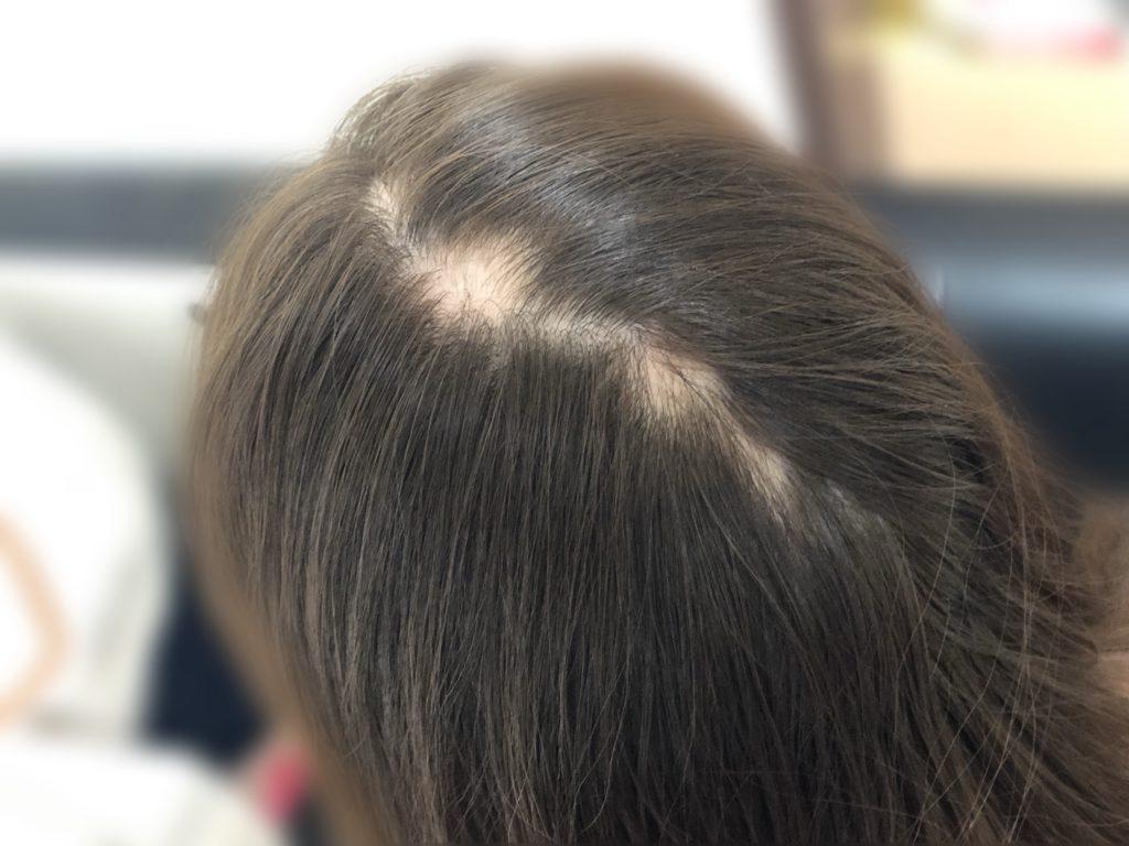 後頭部の円形脱毛症