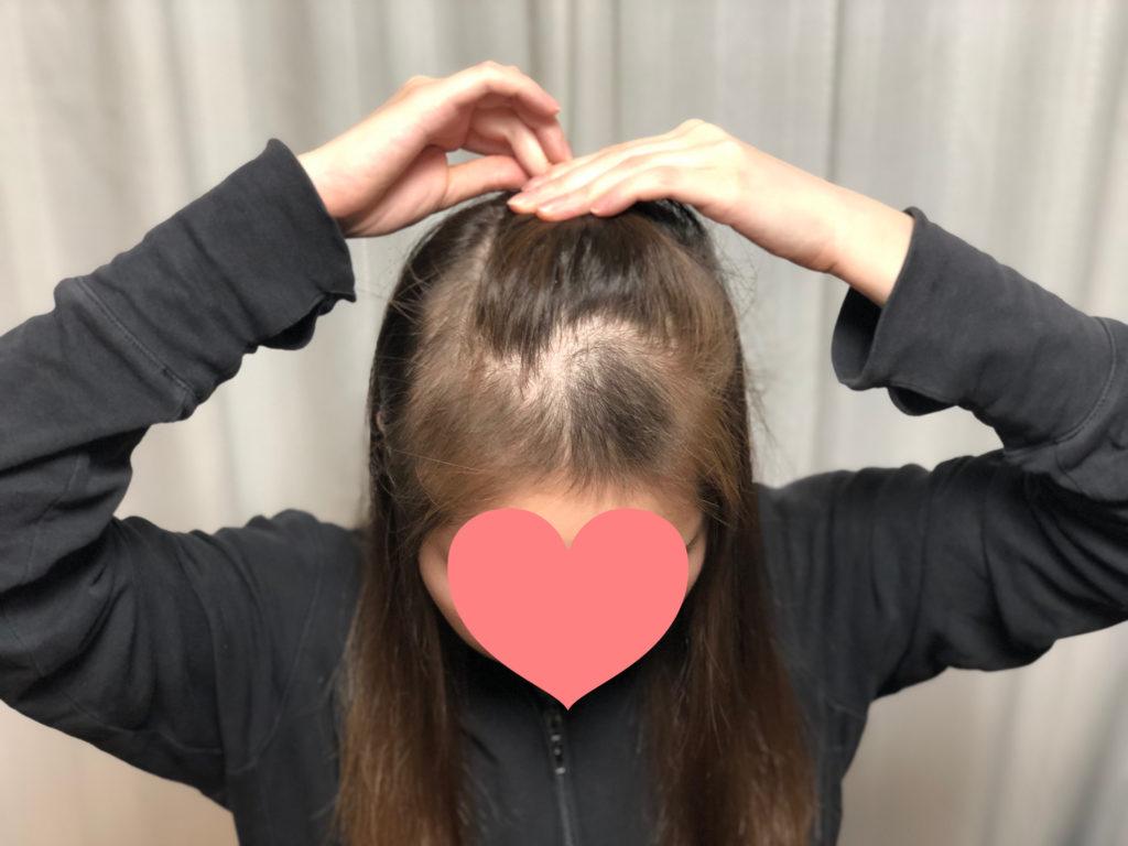円形脱毛症から3ヶ月。産毛が伸びてきました